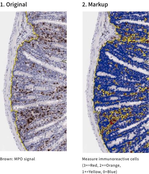 1. Original2. MarkupBrown: MPO signalMeasure immunoreactive cells (3+=Red, 2+=Orange, 1+=Yellow, 0=Blue)