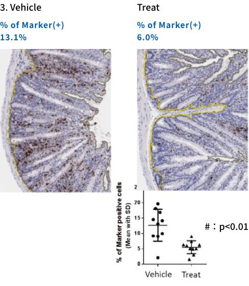 IHC of Neutrophil Marker(myeloperoxidase, MPO) 3. Vehicle Treat